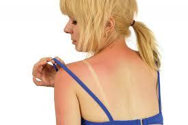 ¿Cómo cubrir las quemaduras de sol?